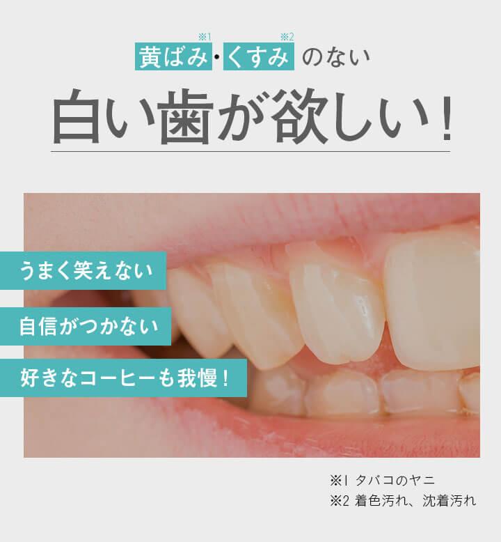 黄ばみ・くすみのない白い歯が欲しい!